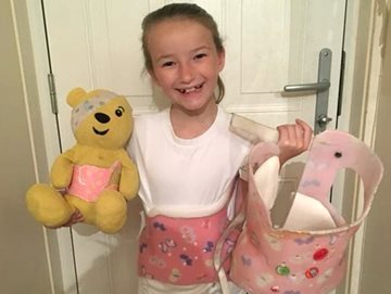 Curbell O&P donates heavy transfer papers to Higgy Bears Foundation who provide teddy bears to children who wear a scoliosis brace
